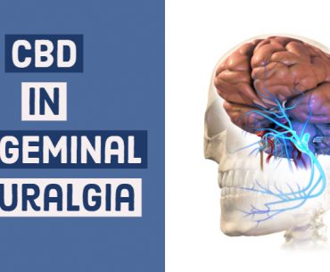 CBD In Trigeminal Neuralgia