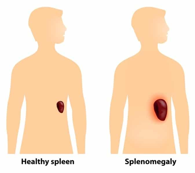 CBD for splenomegaly,Enlarged Spleen And Liver